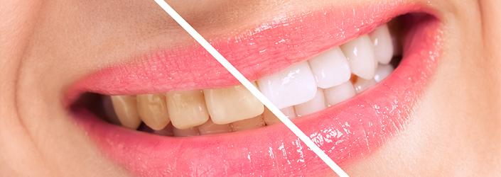 Blanchiment dentaire Nérac