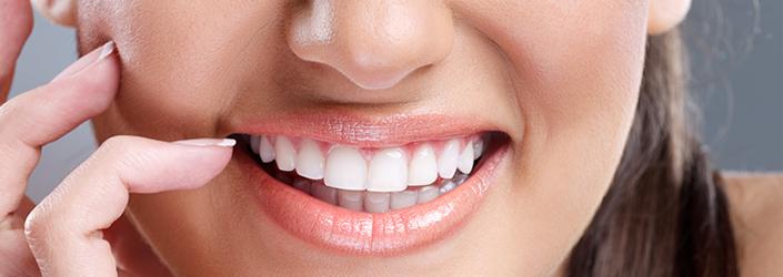Esthétique dentaire Nérac