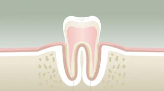 Parodontologie à Nérac Stade 1