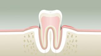 Parodontologie à Nérac Stade 2