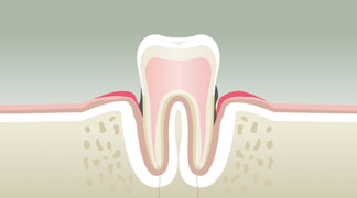 Parodontologie à Nérac Stade 3