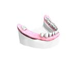 Remplacer plusieurs dents absentes