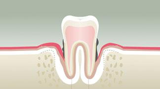 Parodontologie à Nérac Stade 4